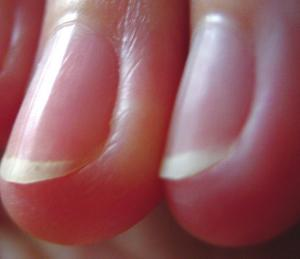 Fingernails the window to your health