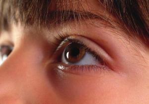 Under-Eye 'Bags' or Festoons? Nationally Recognized Physician Explains Why You Should Know the Difference